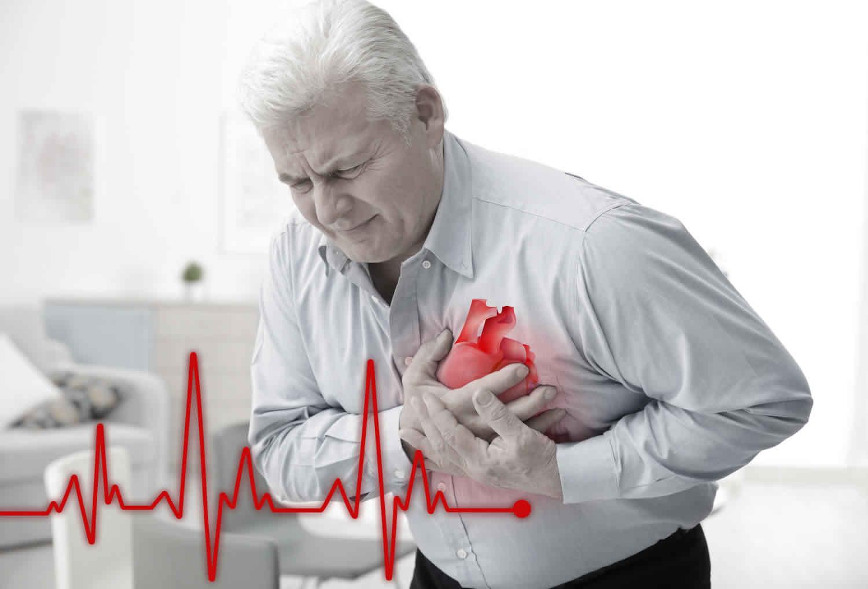 akutni infarkt