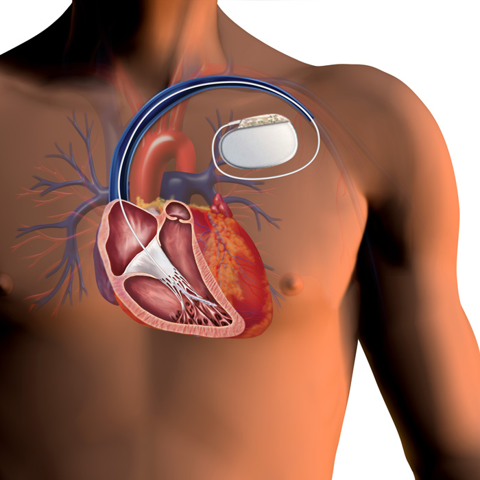 icd defibrilator