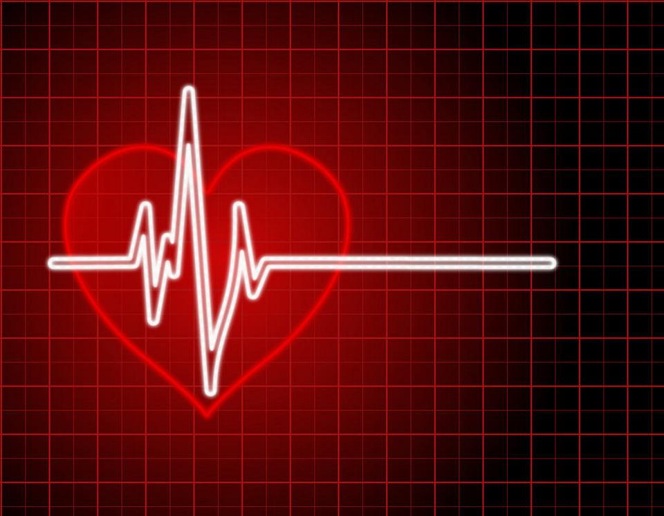 aritmija srce