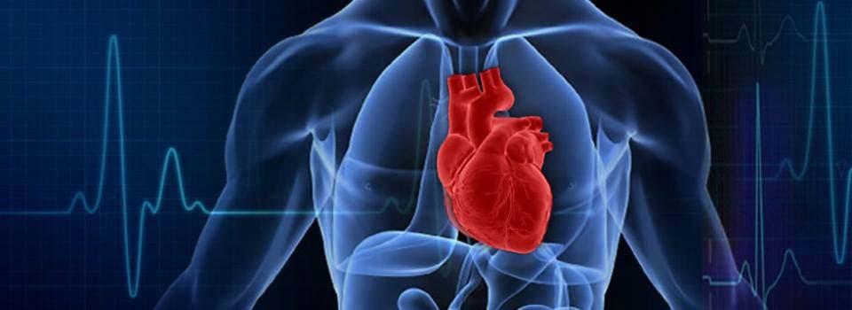 Infarkt miokarda ili srčani udar